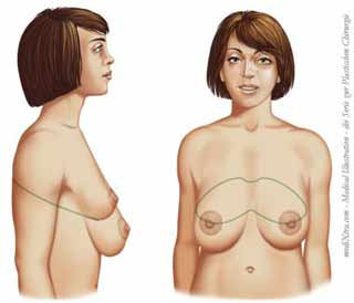 große hängenden Brüste